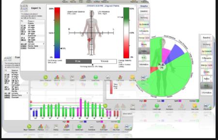 meridianen body  scan acupunctuur Eindhoven & Best