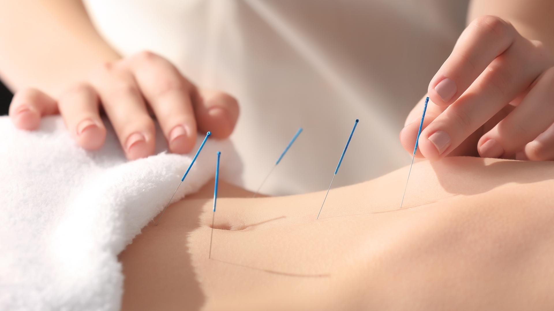 Acupunctuur Eindhoven & Best