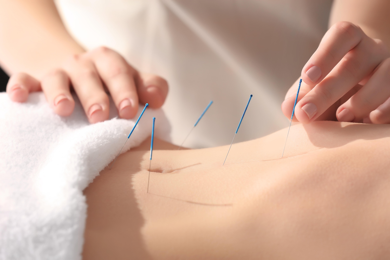 acupunctuur eindhoven best