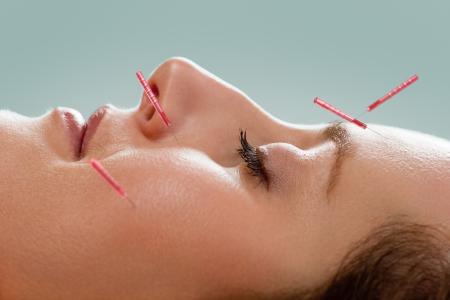 cosmetische acupunctuur Eindhoven en anti aging