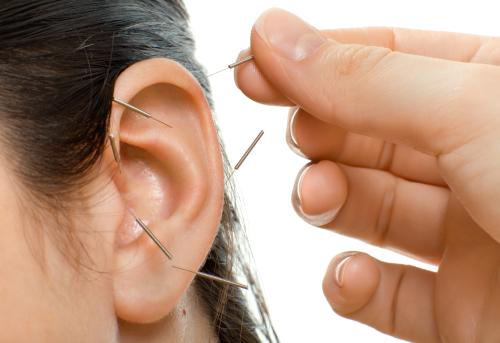 Afvallen met acupunctuur Eindhoven & Best