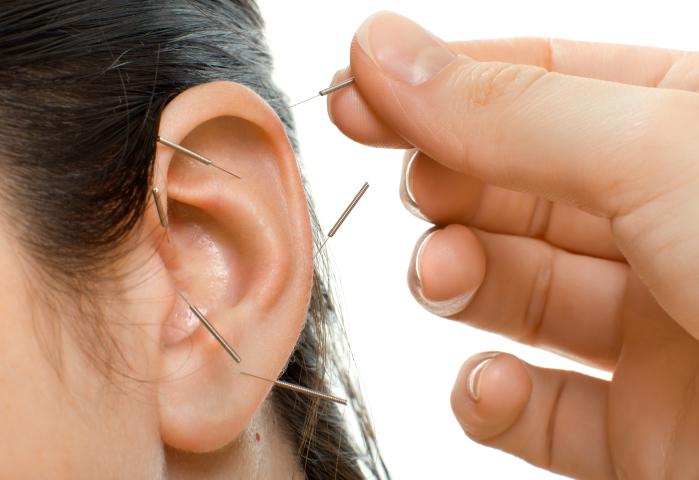Acupunctuur afvallen Eindhoven en Best