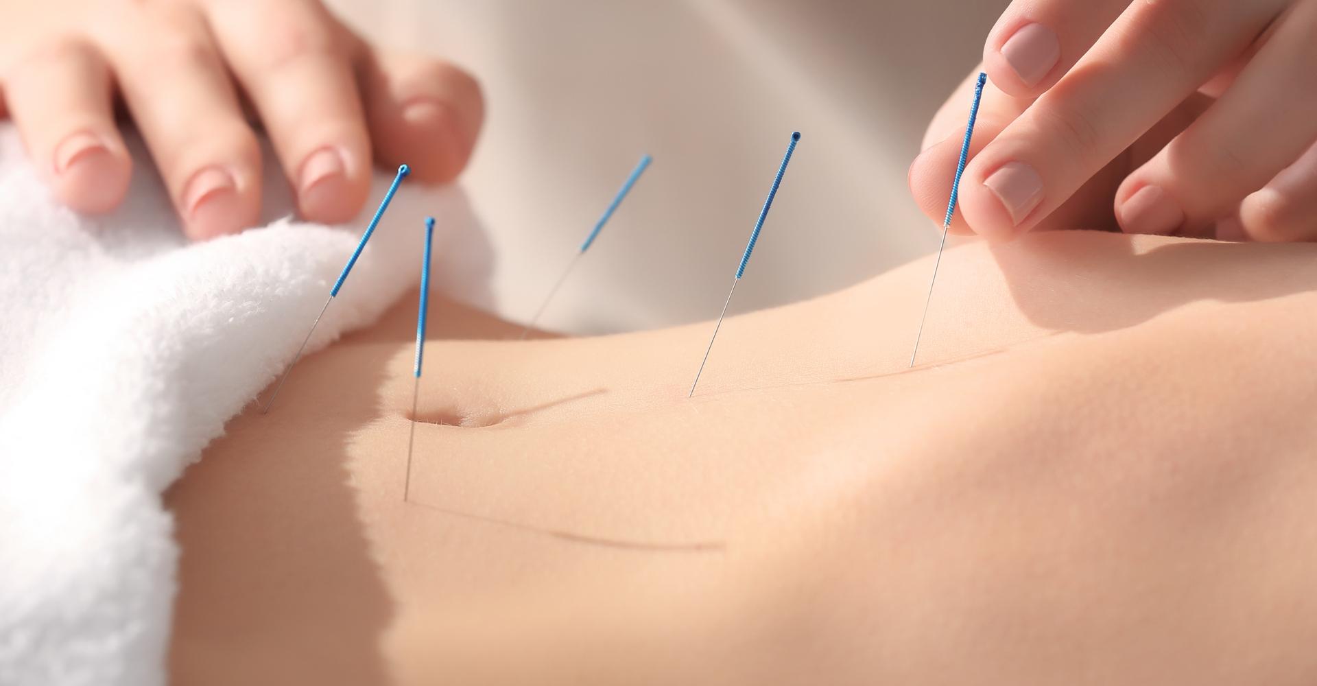 beste Acupunctuur Eindhoven
