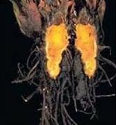 Bonsaiziekte wortelrot