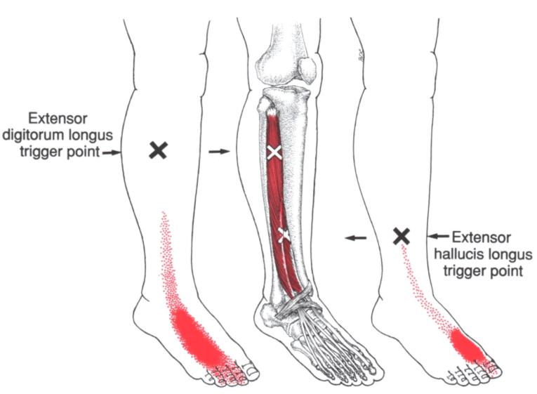 Mortons neuroom zenuwpijn benen triggerpoints-hallucis