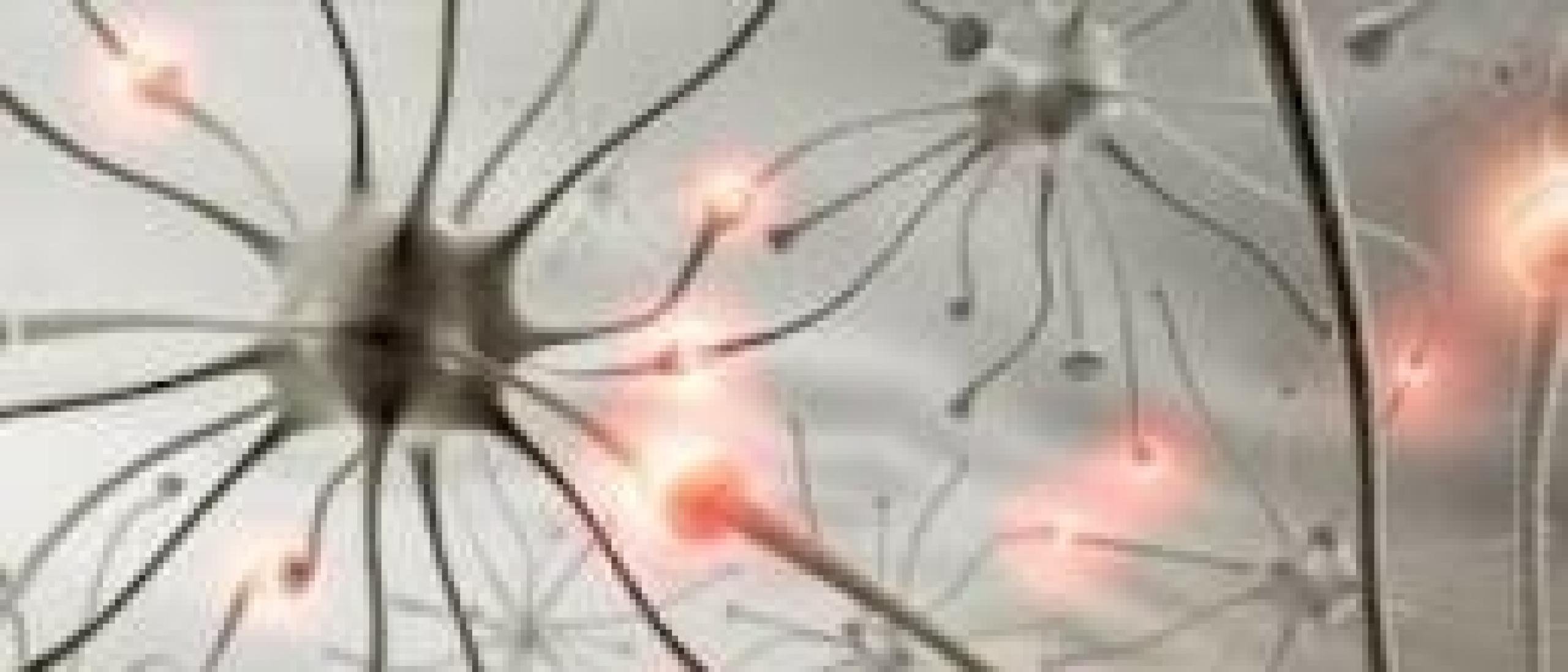 Neuropatische pijn door stress