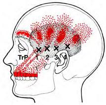 zenuwpijn-aangezichtspijn-kaakpijn-triggerpoint