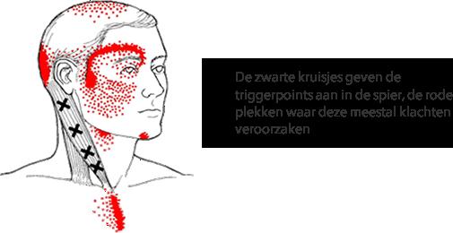 zenuwpijn-aangezichtspijn-triggerpoints