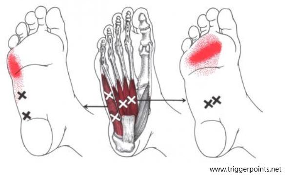 Zenuwpijn benen mortons neuroom Uitstralingspatronen-van-triggerpoints-4
