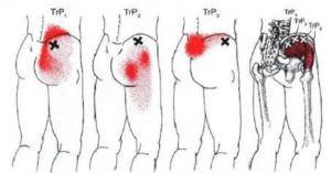 Zenuwpijn benen Triggerpoints Si gewricht