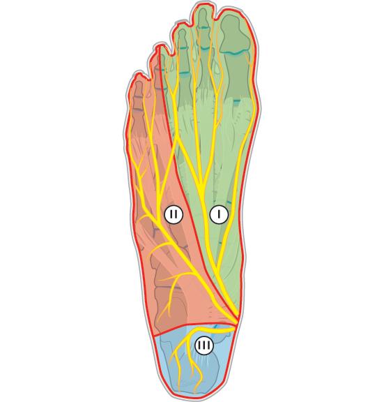 Zenuwpijn benenMortons neuroom symptomen