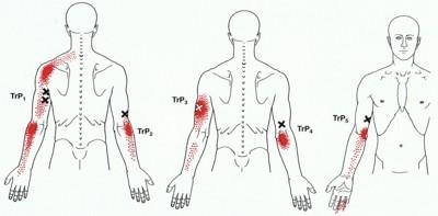 zenuwpijn-brachial-plexus-arm-en-schouder-triggerpoints