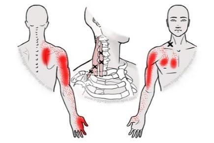 zenuwpijn-brachial-plexus-triggerpoints-hals