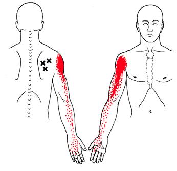 zenuwpijn-brachial-plexus-triggerpoints-infraspinatus