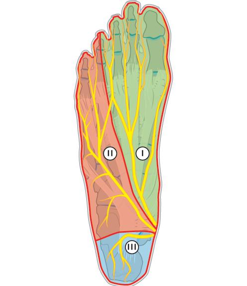 Zenuwpijn Mortons neuroom symptomen