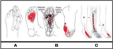 zenuwpijn-mortons-neuroom-triggerpoints-voet