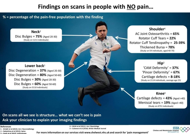zenuwpijn-onderzoek