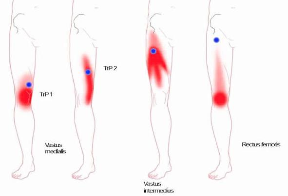 zenuwpijn-plexus-lumbaklis-triggerpoints-quadriceps