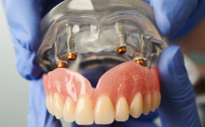 tandimplantaten