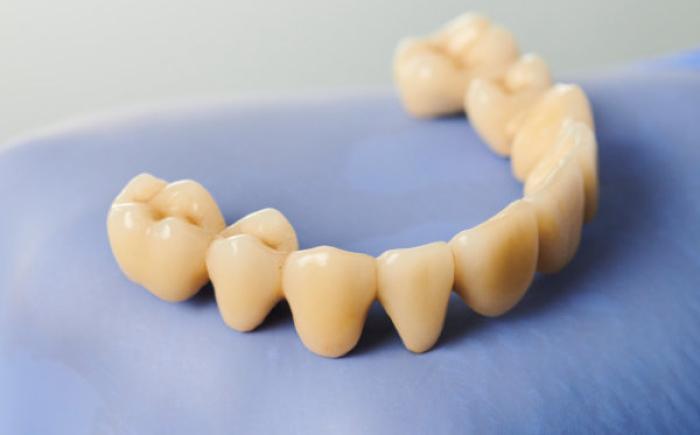 Geen loszittend kunstgebit maar vaste brug op All on 4 implantaten