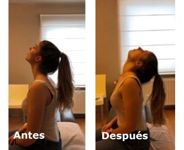 Alguien antes y después de un Collum-tratamiento