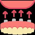 Klikprothese De Saense Tandmeesters