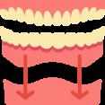 Volledige Gebitsprothese De Saense Tandmeesters