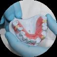 Partiele Prothese De Saense Tandmeesters
