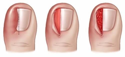 ingegroeide nagel, operatie, nagelbeugel
