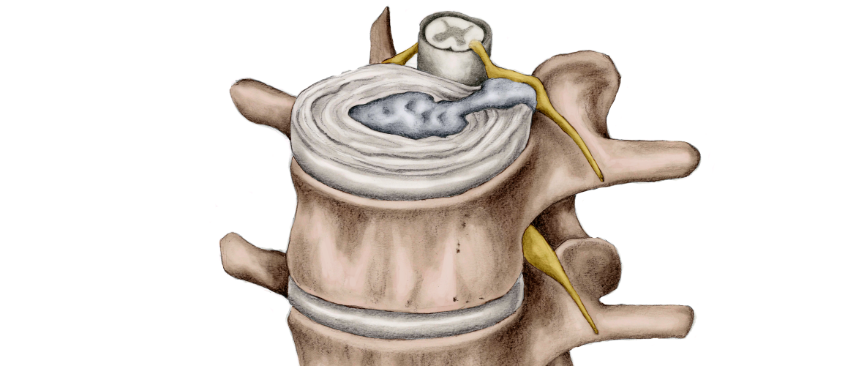 hernia-symptomen-ontstaan-behandeling