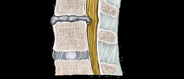 ischias-wervelkolom-rug-symptomen-behandeling