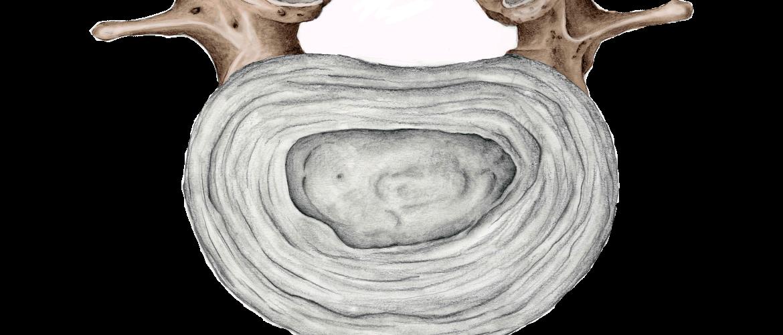 wervel-slijtage-stenose-rug