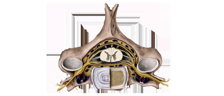 Wat te doen bij tintelingen, doof gevoel of scheuten in je been?