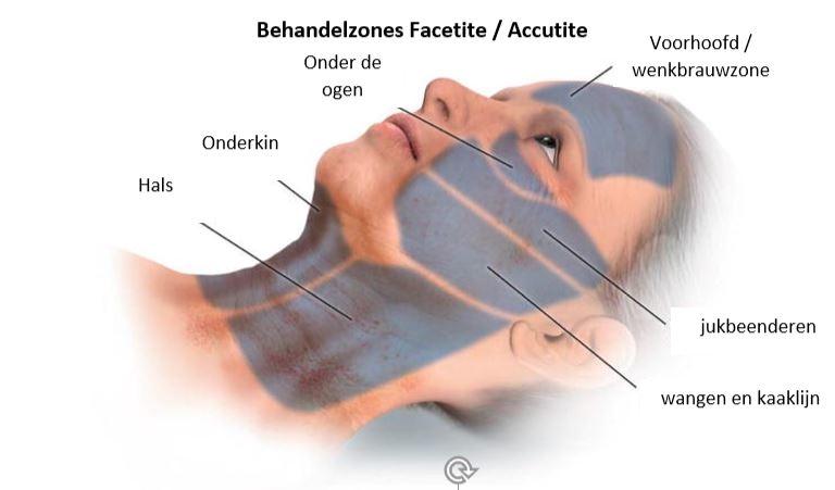 Strakke kaaklijn. wat kun je behandelen met facetite accutite? onderkin weghalen