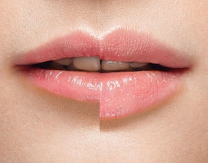 injectables den haag fillers lipfillers