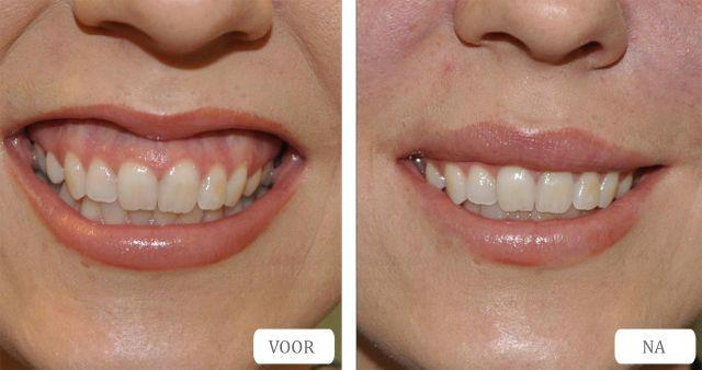 botox gummy smile botox tandvleesglimlach