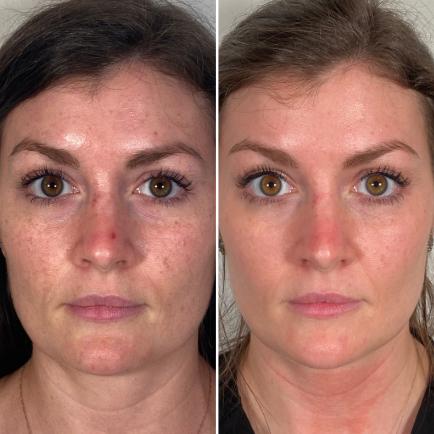 morpheus8 huidverbetering voor en na foto