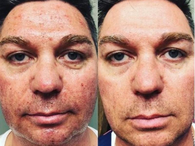 Morpheus8 huidverbetering voor en na