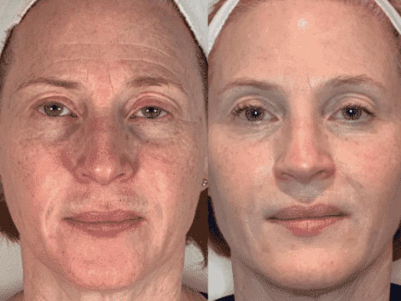 Morpheus pigmentvlekken verminderen voor en na foto