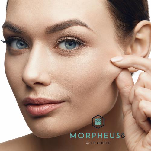 Morpheus8 behandeling microneedling voor en na
