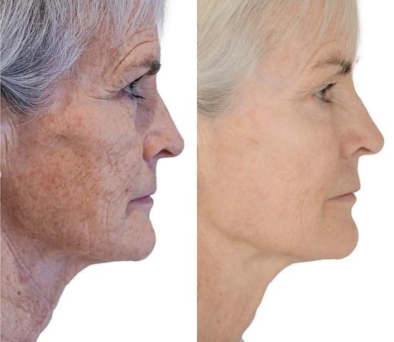 pigmentvlekken gezicht verwijderen morpheus8