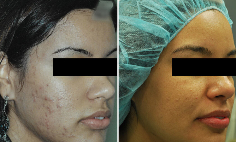 morpheus8 acne verwijderen voor en na foto