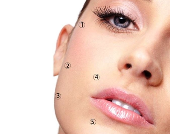 injectables den haag profhilo
