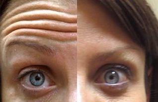 botox voorhoofd voorhoofdsrimpels voor en na