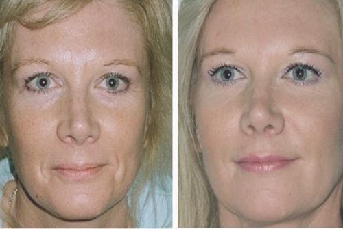 Skinboosters voor en na foto
