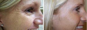 wat is botox
