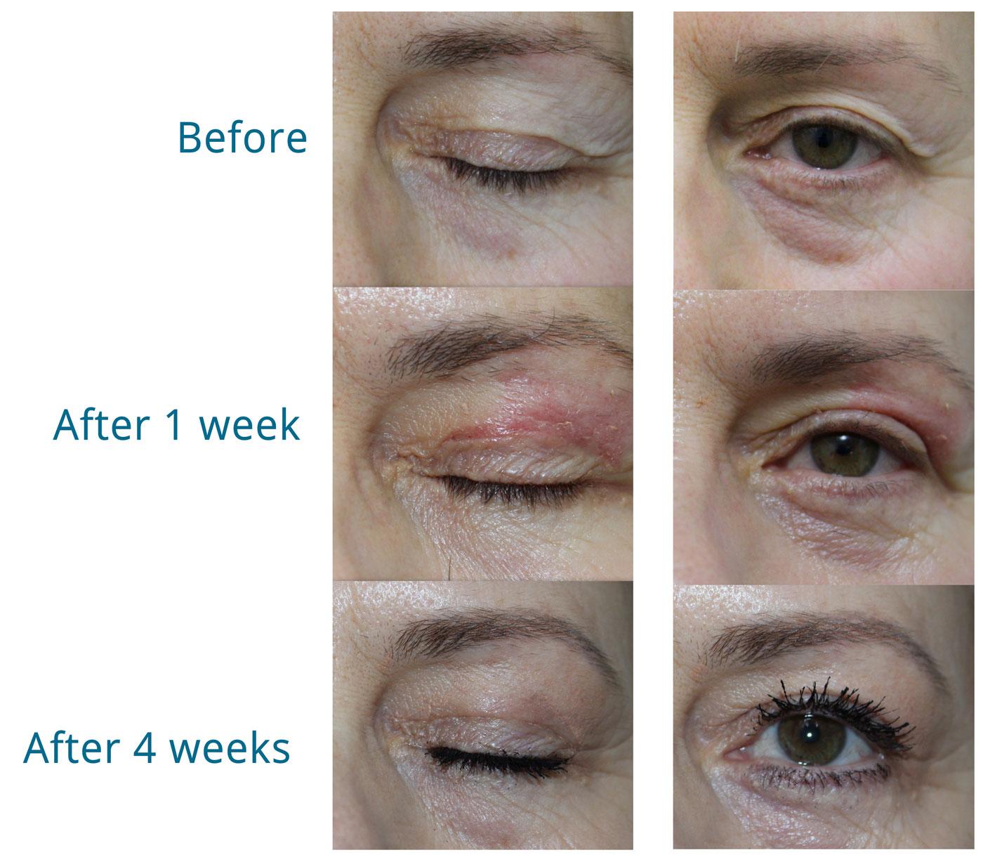 zwelling na ooglidcorrectie