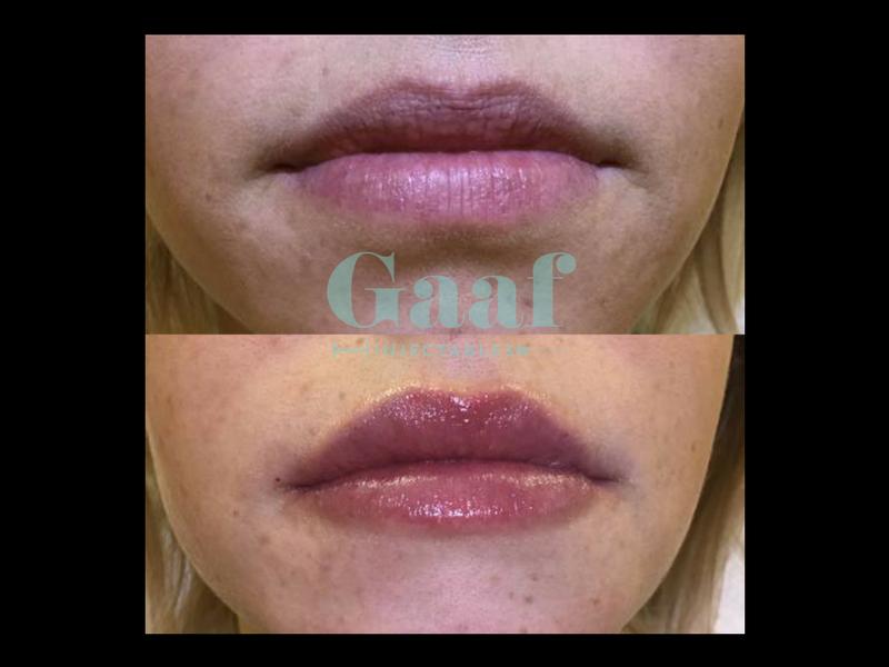 lipvergroting Den Haag, botox lippen den haag, lipfillers den haag, lippen opvullen den haag,