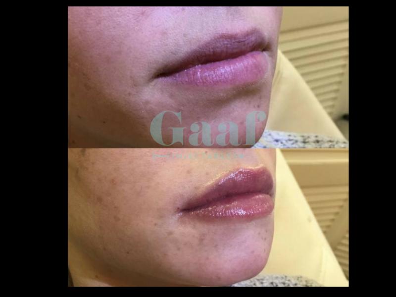 fillers lippen, lippen opvullen, lipvergroting, botox lippen, lip filler