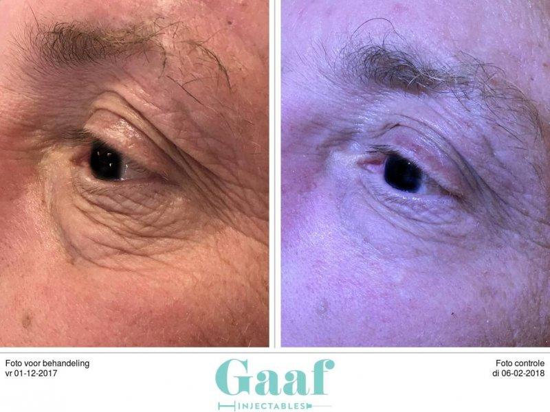 kraaienpootjes ooglift plexr den haag ooglidcorrectie plexr soft surgery plexr ervaringen plexr voor en nadelen plexr wallen